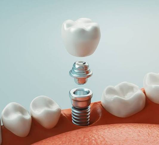dental implant in North Raleigh being placed in the bottom jaw