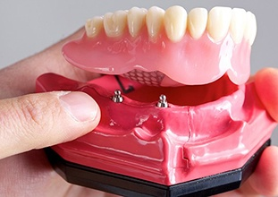full denture being placed on a model of the jaw