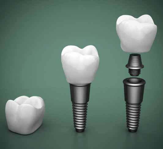 dental implant crown, abutment, and post