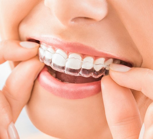 Closeup of how Invisalign in Raleigh works