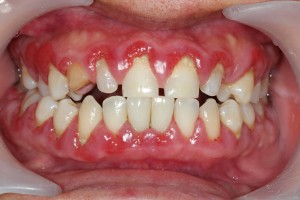Gum disease treatment in North Raleigh can save your healthy teeth and gums.