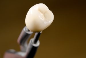 Newly crafted dental crowns in North Raleigh