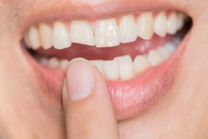 Chipped tooth needs treatment from North Raleigh emergency dentist